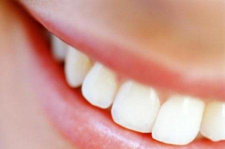 Остеопластика в стоматологии